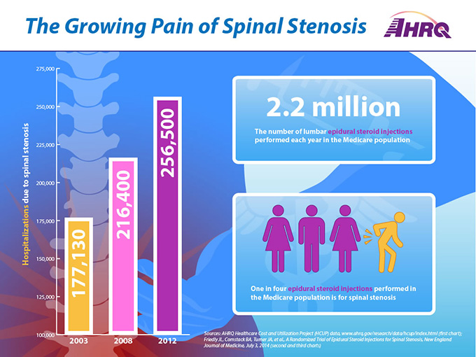 The Growing Pain of Spinal Stenosis. Chart 1: Hospitalizations due to spinal stenosis (Bar graph): 2003 (177,130), 2008 (216,400), 2012 (256,500).Chart 2: 2.2 million lumbar epidural steroid injections are performed each year in the Medicare population.Chart 3: One in four epidural steroid injections performed in the Medicare population is for spinal stenosis.