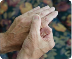 Image: A pair of hands with rheumatoid arthritis are shown.