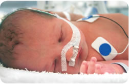Image of baby in intensive care units