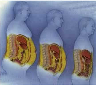 Three successive images of a man's torso displays the effect of body weight on the internal organs.