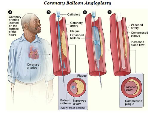 Drawing of coronary arteries and what happens to them during a coronary balloon angioplasty.