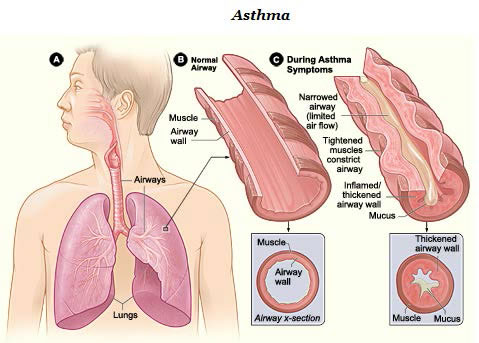 Drawing showing normal airway and airway during asthma symptoms.