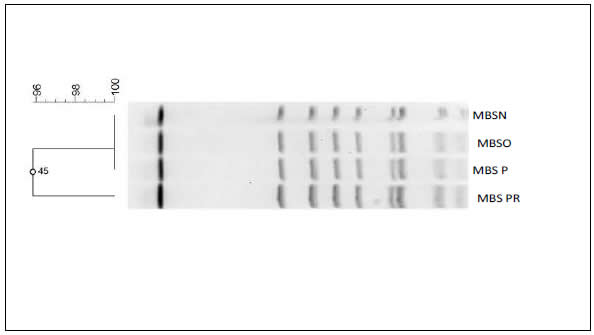 Figure 2: Pulsed-field gel electrophoresis image of long-term care facility resident's strain resembling EMRSA-15 – shows the pulsed-field gel electrophoresis image of a long-term care facility resident's strain that resembles the EMRSA-15 strain that has spread from the United Kingdom to several countries in Europe and Asia but is rarely detected in the United States.